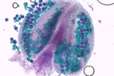 cytogenetic