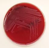 Arcanobacterium pyogenes