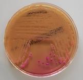 Enterobacter spp.