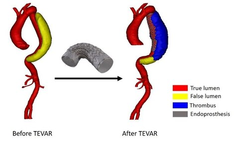 Figure 1: Type B aortic dissection before and after implanting an endoprosthesis, during TEVAR. After the treatment, partial thrombus formation of the false lumen was observed.