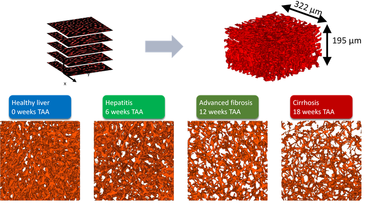 microvascular_liver_architecture.png
