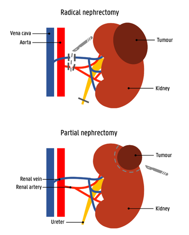 partial_nephrectomy-1.png