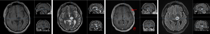 figure 1: magnetic resonance imaging of a brain tumour with different sequences  (T1-weighted, T2-weighted, MPRAGE, FLAIR)