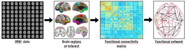 neuroimaging-biomarkers-major-depressive-disorder.png