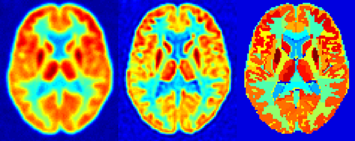 Figure 1: Phantom study for activity recovery in PET scans. Left: virtual PET scan; middle: PET-based correction (iterative deconvolution); right: MRI-based correction (Rousset)