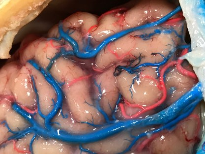 Reperfused human brains