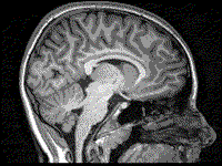 A picture of a T1-weighted MRI scan of the head.