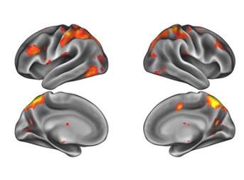 Hersenen (vergrote weergave)