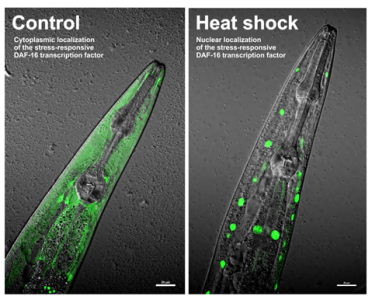 Nuclear relocation of a DAF-16::GFP reporter in C. elegans upon heat shock.