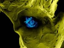 Elektronenmicroscopische opname van een macrofaag die een longblaasje aftast op zoek naar vreemde indringers.