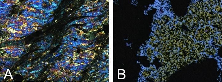 [A] Foto 2: Toermalinisatie en muscovitisatie geassocieerd met een adertype Sn-mineralisatie uit Rutongo (Rwanda) (doorvallend lichtmicroscopie met gekruiste polarisatoren). [B] Cu-Co mineralisatie uit Kamoto (DRCongo) met chalcopyriet, chalcociet en borniet (opvallend lichtmicroscopie)